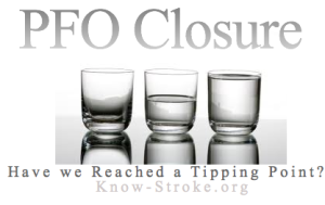 PFO Closure Tipping Point