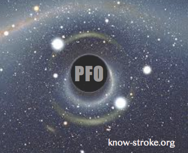 pfoblackhole_knowstrokeorg